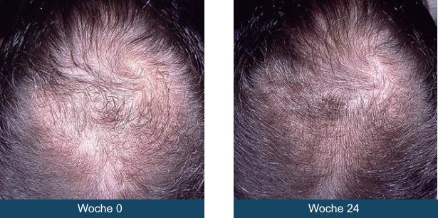 Haarwachstumd_nach_24_Wochen
